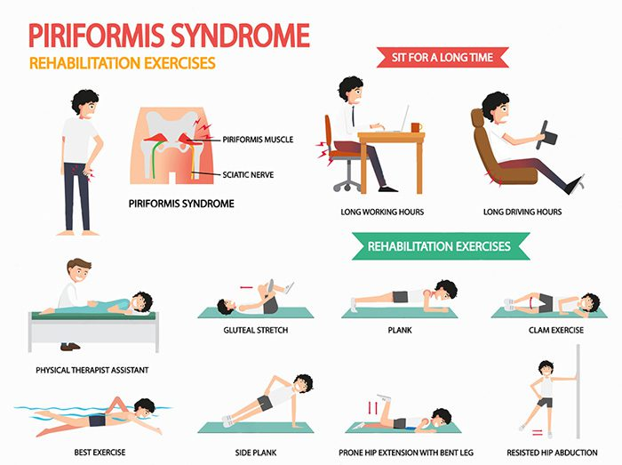 stretches piriformis syndrome pain el paso tx.