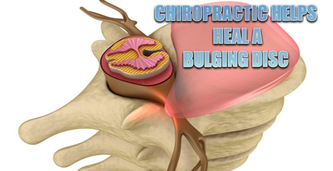 heal bulging disc el paso tx.