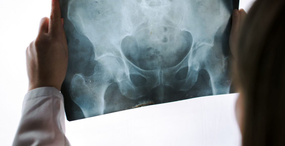 diagnosis hip arthritis and neoplasms el paso tx.